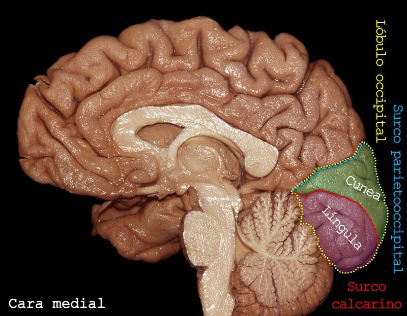 Lobulo occipital. Imagen: Dr. Marcos Chiarullo, Hospital El Cruce.