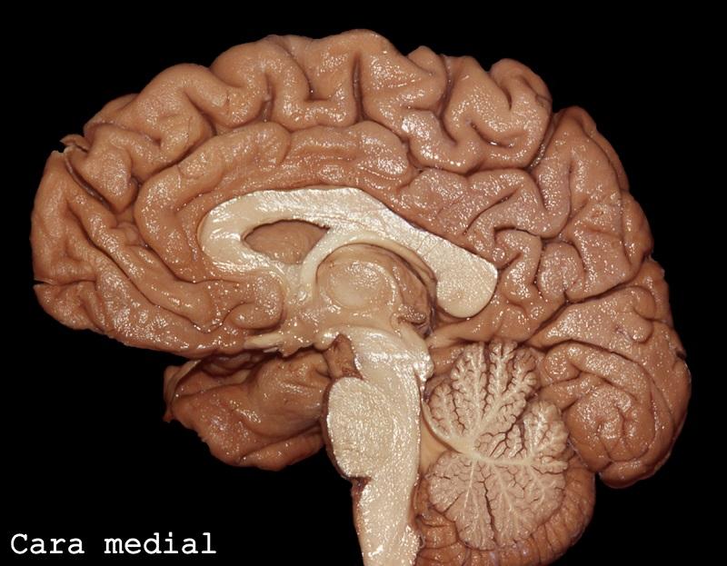 Cara medial cerebro. Imagen: Dr. Marcos Chiarullo, Hospital El Cruce.