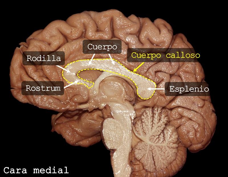 rostrum, rodilla, cuerpo calloso, esplenio. Imagen: Dr. Marcos Chiarullo, Hospital El Cruce.