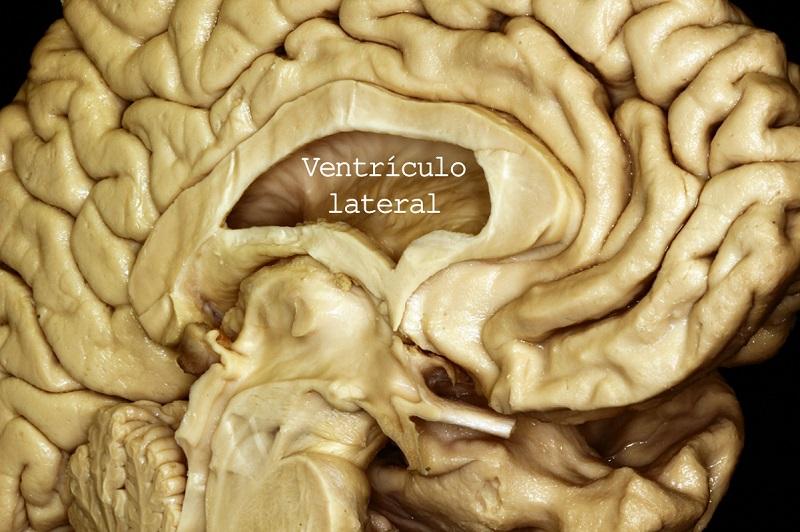 Ventriculo lateral. Imagen: Dr. Maximiliano Nuñez, Hospital El Cruce.