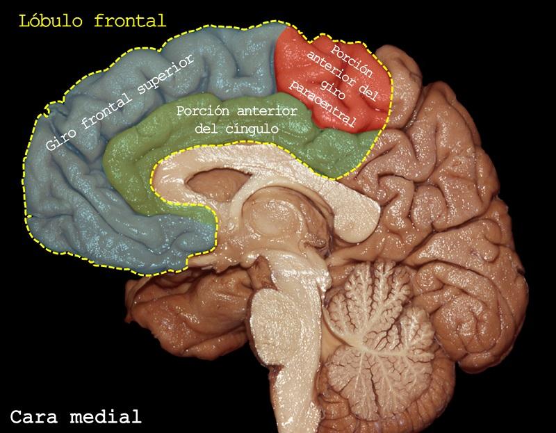 Lobulo frontal. Imagen: Dr. Marcos Chiarullo, Hospital El Cruce.