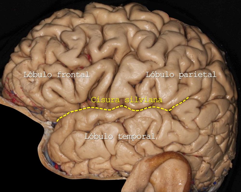 Lobulo frontal, lobulo parietal, cisura silviana, lobulo temporal, Dr. Marcos Chiarullo