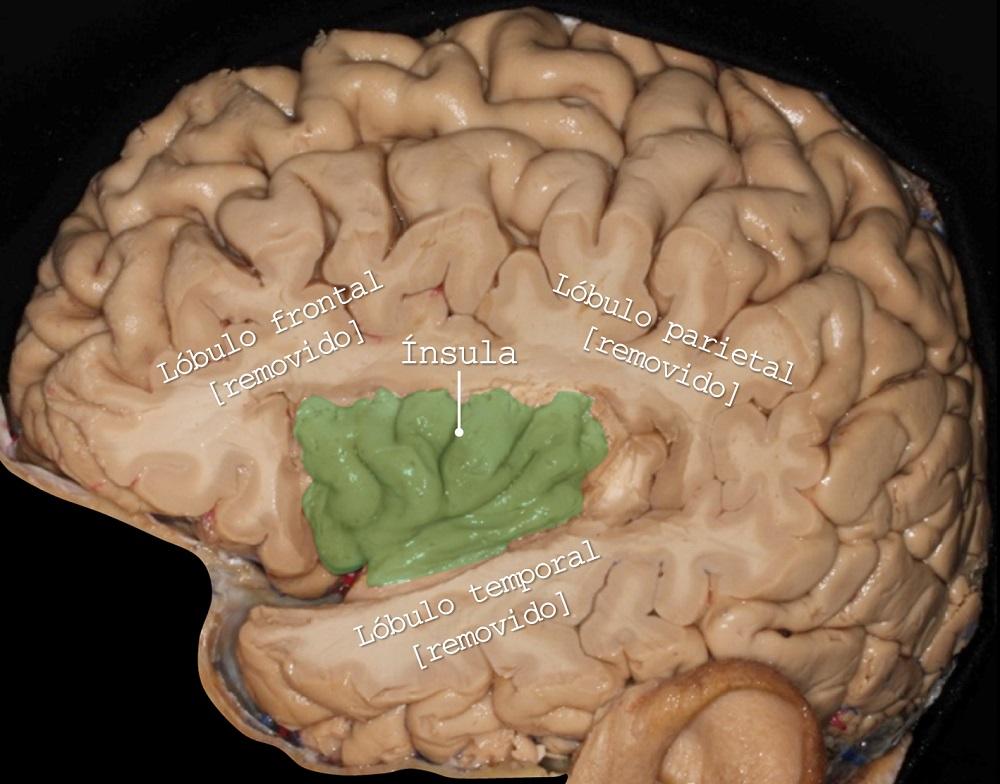 lobulo frontal, lobulo parietal, lobulo temporal, insula, Dr. Marcos Chiarullo