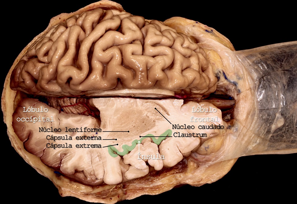 lobulo occipital, lobulo frontal, nucleo lentiforme, capsula externa, capsula extrema, nucleo caudado, claustrum, insula, Dr. Maximiliano Nuñez