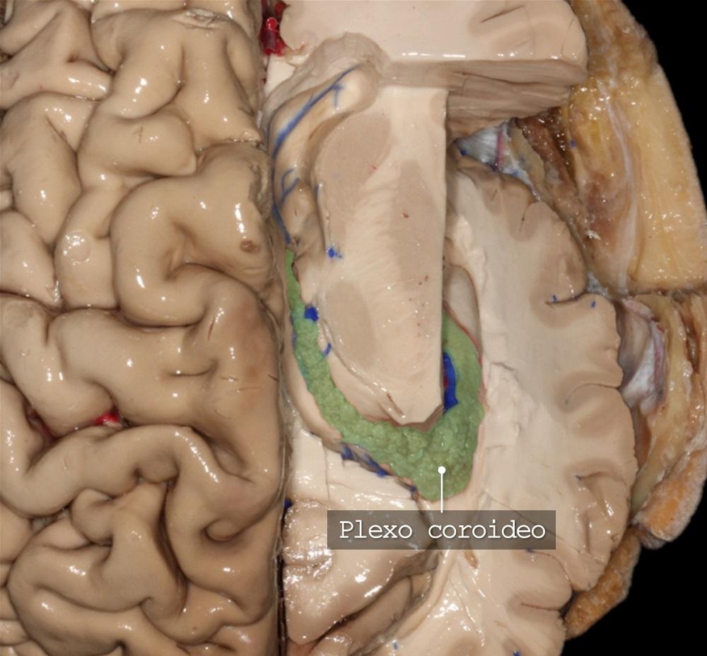 Imagen: Dr. Marcos Chiarullo. Anatomía, Neuroanatomía, Cerebro, Sistema nervioso central, Sistema nervioso, Ventrículos laterales, Liquido cefalorraquídeo, Hemisferio cerebral, Superficie cerebral medial, Ventrículos cerebrales, Sistema ventricular