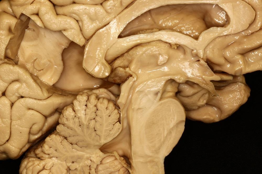 Imagen: Dr. Maximiliano Núñez. Anatomía, Neuroanatomía, Cerebro, Sistema nervioso central, Sistema nervioso, Ventrículos laterales, Liquido cefalorraquídeo, Hemisferio cerebral, Superficie cerebral medial, Ventrículos cerebrales, Sistema ventricular